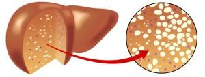 6 คำถามน่ารู้ โรคไขมันสะสมในตับ