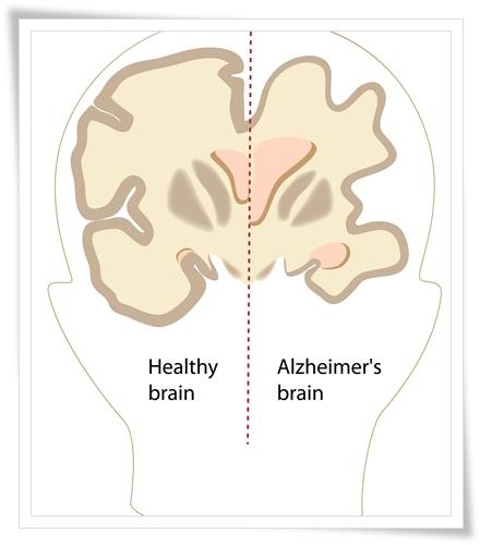 สาระน่ารู้กับโรงพยาบาลธนบุรี เกี่ยวกับสุขภาพภาวะสมองเสื่อม