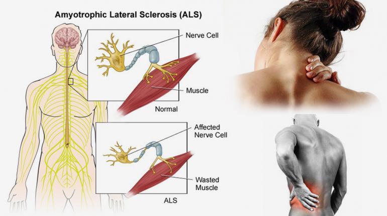 โรคเอแอลเอส หรือโรค Amyotrophic lateral sclerosis (ALS/MND)