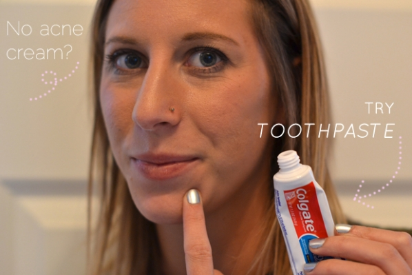 แปลกแต่จริง กับการใช้ยาสีฟันกำจัดสิวหัวดำ